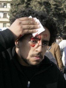 Guy with blood on head